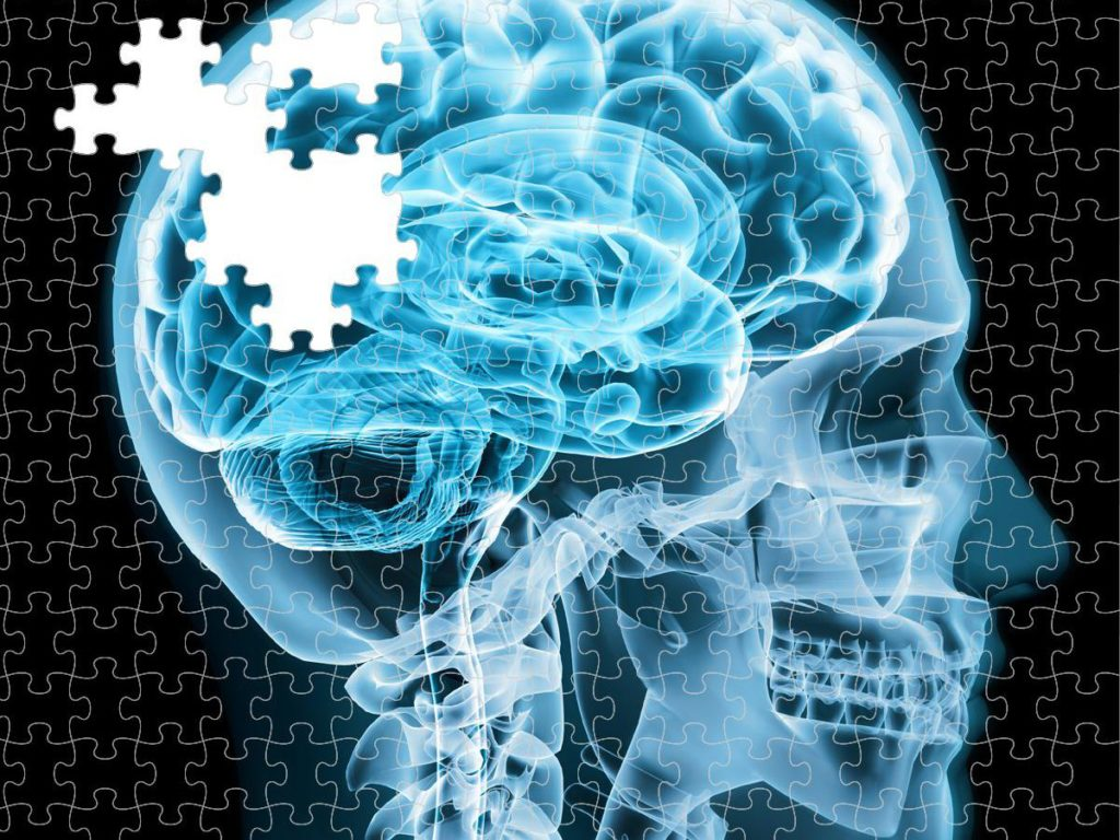 brain puzzle Alzheimer's is a diabetic disorder of the brain, researchers find