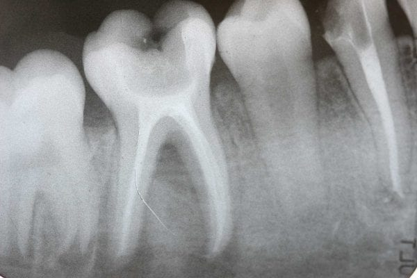 root canal dangers