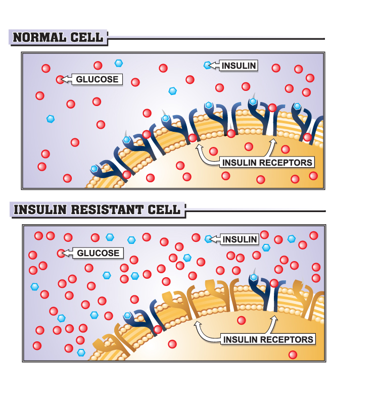 insulin in cell The insulin resistance diet protocol