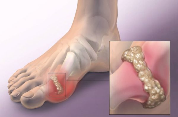 How to remove gout and joint pain from your life – uric acid and crystals