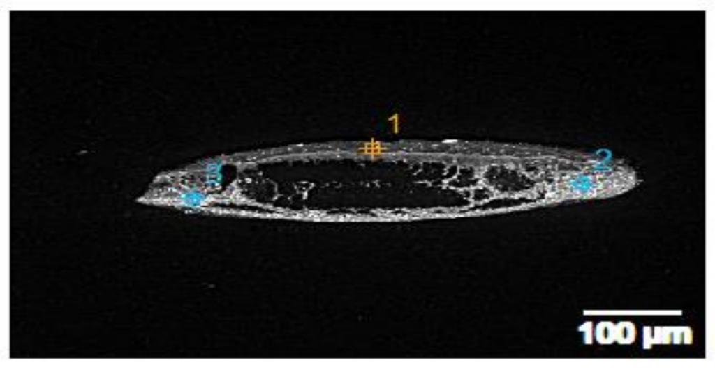 fig 19 Scanning & transmission electron microscopy reveals graphene oxide in Covid-19 vaccines (33 photos)