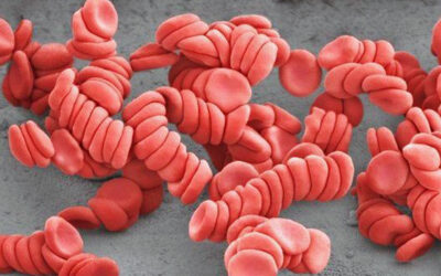 Pfizer: COVID vaccinated people shed spike proteins, see post vaccine blood in microscope (video)
